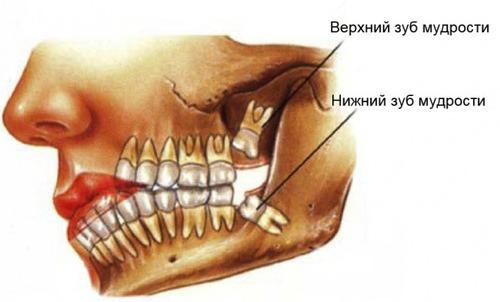 Нужен ли зуб мудрости?