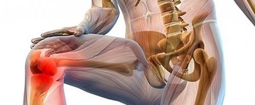 Хрустят суставы: основные причины и профилактика заболевания