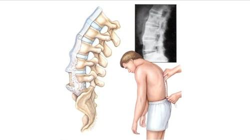 Упражнение для спины, которое поставит позвонки на место