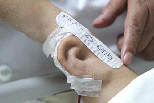 Китайские врачи успешно пересадили выращенное на руке ухо
