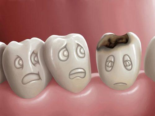 5 мифов о здоровье зубов и кариесе, в которые не нужно верить