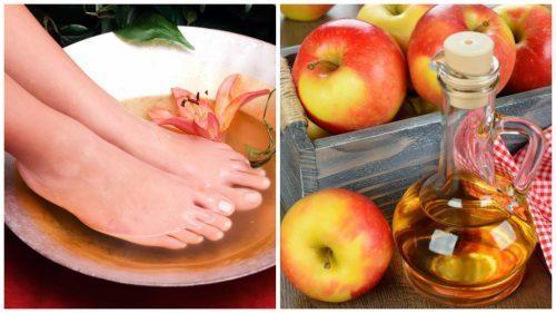 6 причин делать ножные ванны с яблочным уксусом