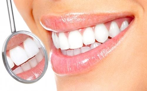 Попробуем отбелить зубы в домашних условиях