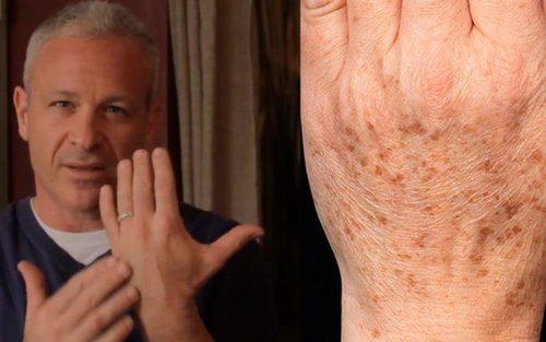 Удаляем пигментные пятна на коже