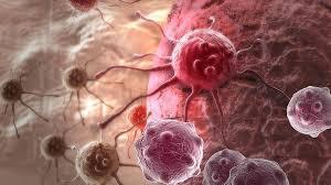 Ученые обнаружили легко устранимую причина рака