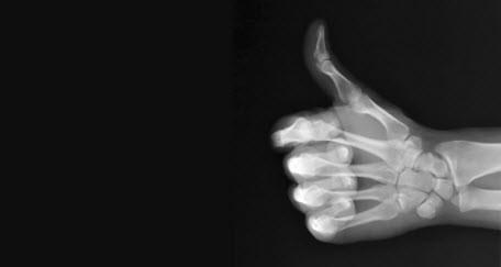 Привычки, разрушающие наши кости