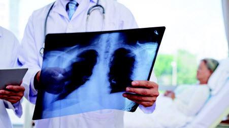 Легко ли подхватить пневмонию